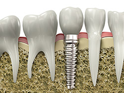 Dental Implant Model - Chambers Bridge Dental
