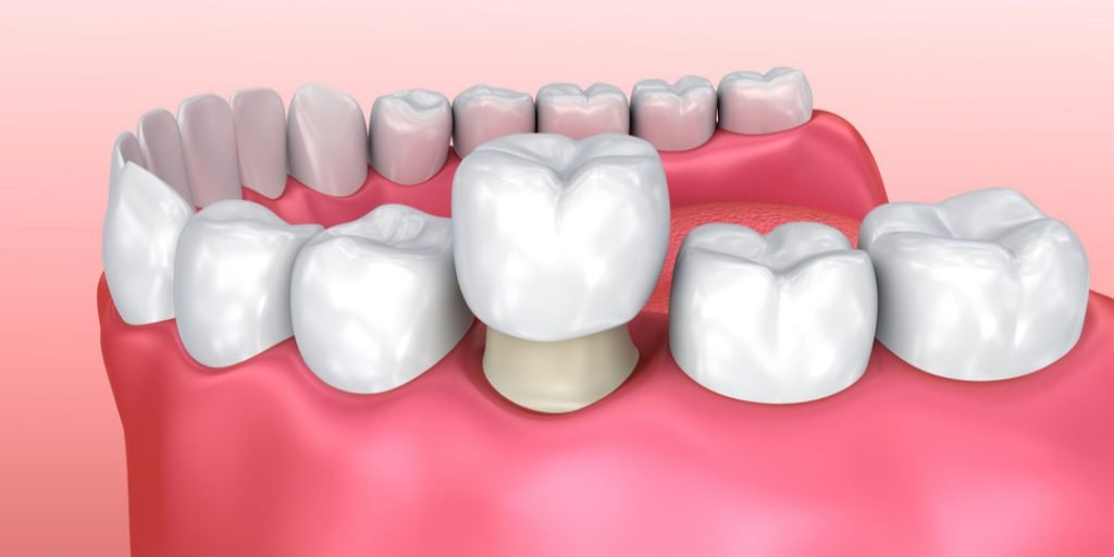 Illustration of Dental Crown Being Placed On Root of Tooth